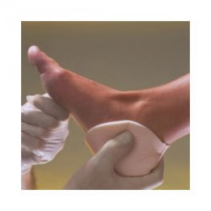 Allevyn Non-Adhesive Heel Foam Dressing Προστασια Φτερνας